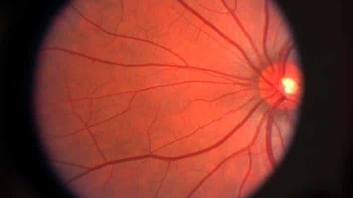 Yaşa bağlı makula dejenerasyonu için yapay retina geliştirildi